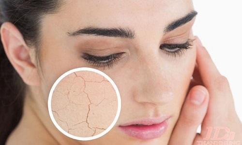 Tình trạng da khô thường gặp mùa đông